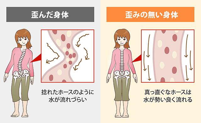 歪みのない身体が慢性疲労症候群の改善に繋がる